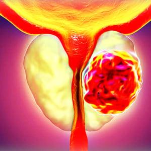 Enlarged Prostate Gone