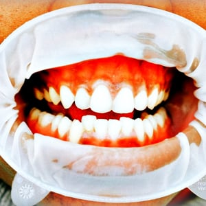 Do This 60 Second Trick To Rebuild Your Gums & Teeth